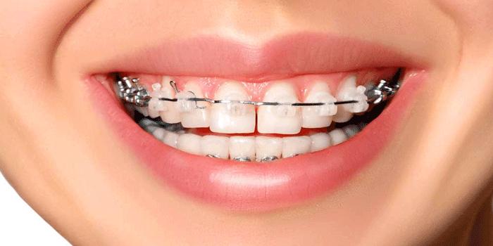Ortodonzia Studio Dentistico Zotti