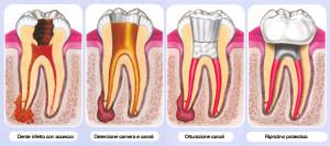 fasi endodonzia; devitalizzazione